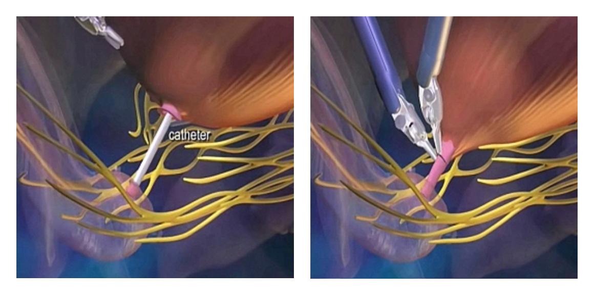 Mesanenin idrar kanalı ile yeniden birleştirilmesi (anastomoz)