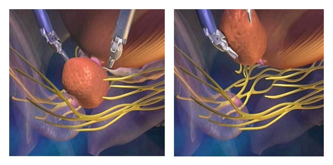 Sinir-damar demetinin korunarak prostatın çıkartılması (anastomoz)